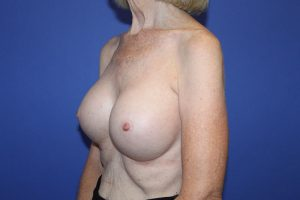 Mission Viejo Breast Implants