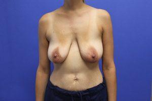 Breast Implants Mission Viejo