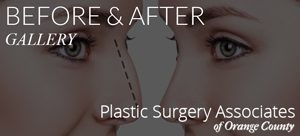 Before and after plastic surgery associates of orange county