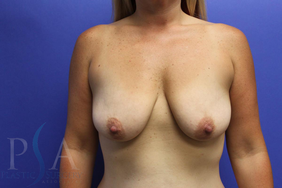 Breast Implants Mission Viejo