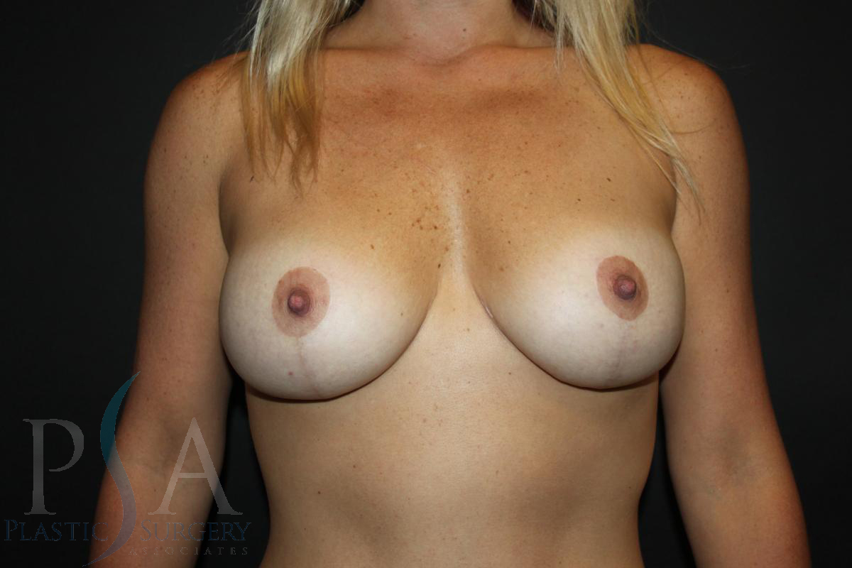 Mission Viejo Breast Implants