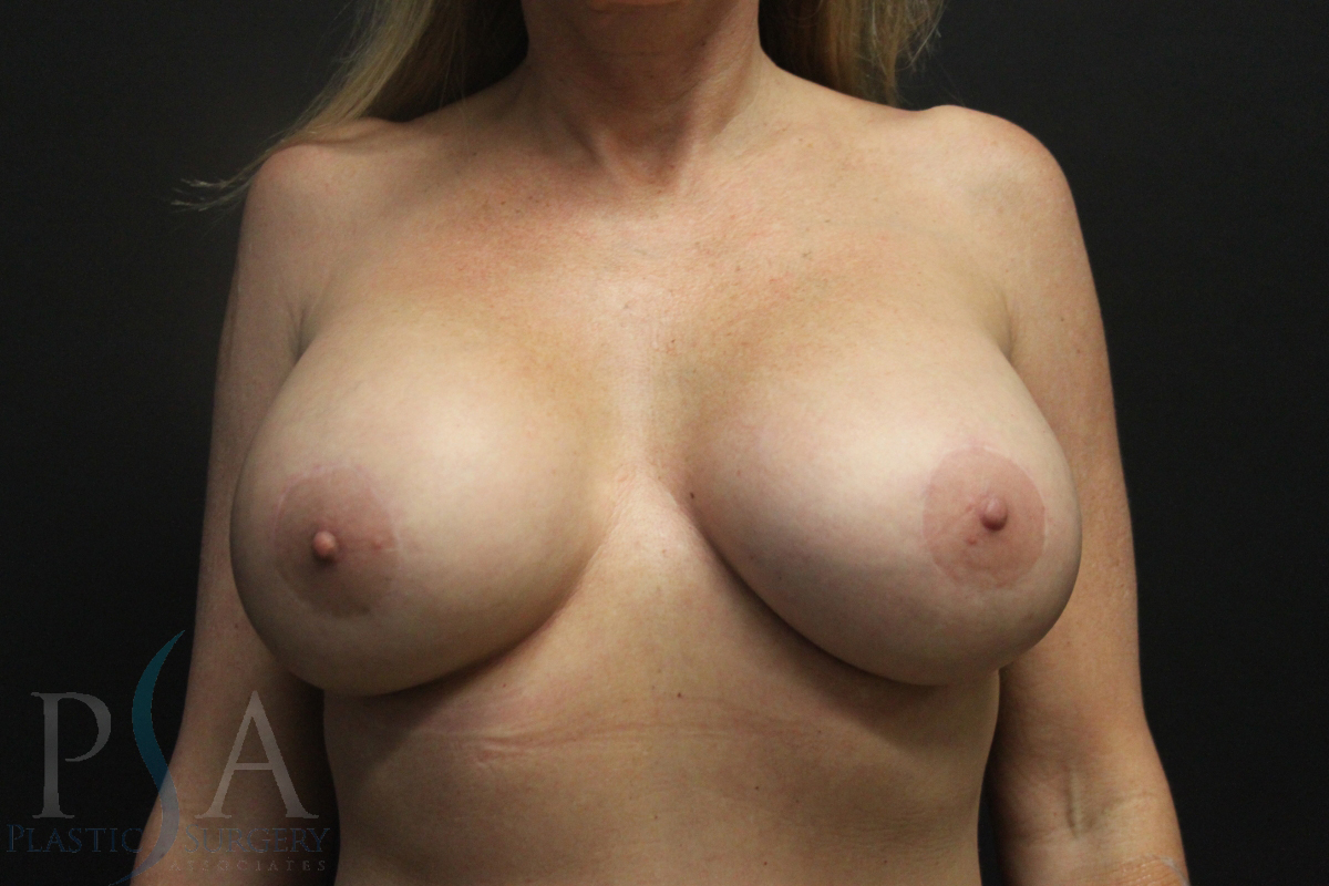 Mission Viejo Breast Reconstruction