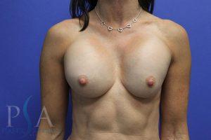 Mission Viejo Plastic Surgery