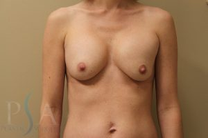 Breast Reduction Mission Viejo