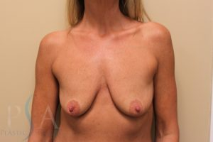 Breast Lift with Implants Mission Viejo