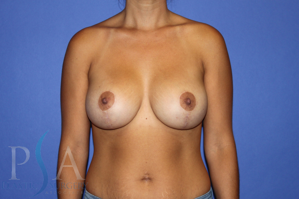Tummy Tuck Mission Viejo