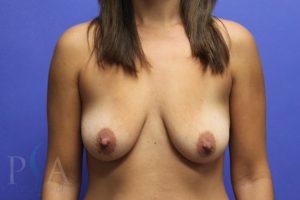 Orange County Plastic Surgery