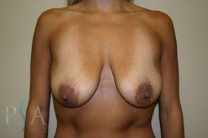 Mission Viejo Breast Reduction