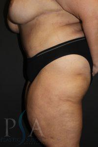 Liposuction Mission Viejo