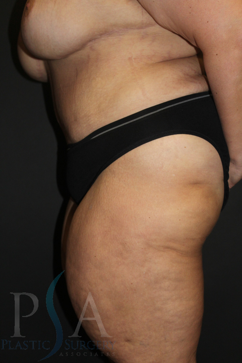 Liposuction Mission Viejo