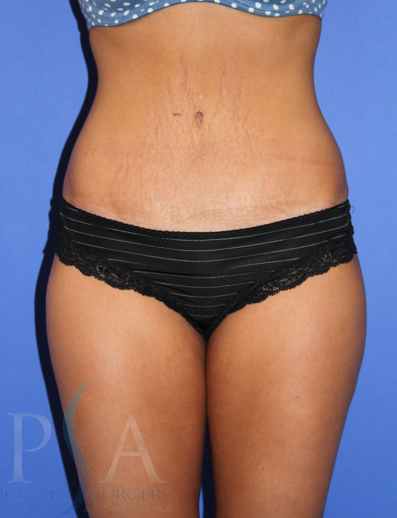 Orange County Plastic Surgery