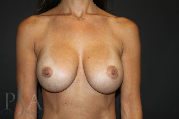 breast-Removal-and-Replacement-02-post-op