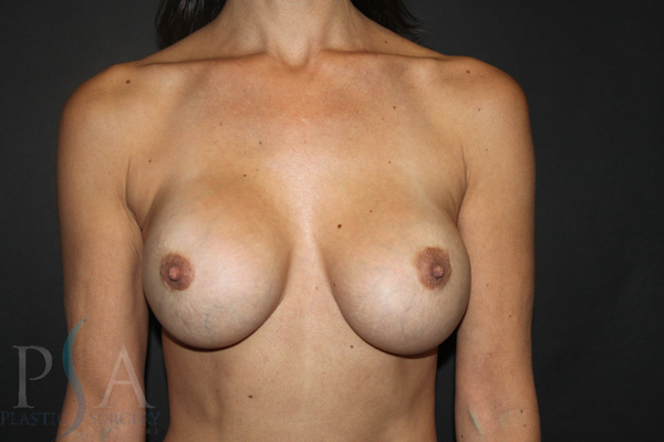 breast-Removal-and-Replacement-02-pre-op